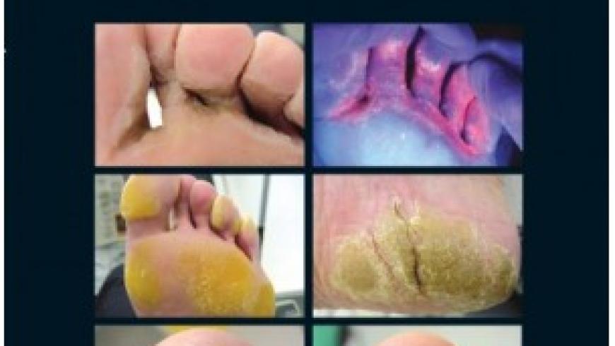 Le infezioni fungine del piede
